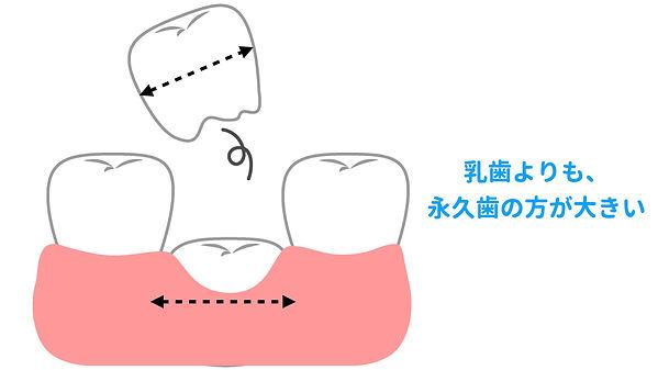 歯の生え変わり.jpeg