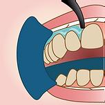 ホワイトニングの歯肉保護