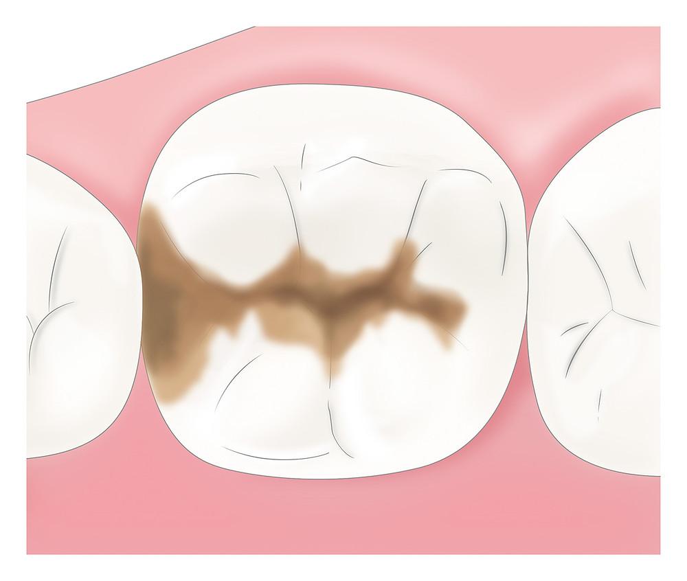 奥歯のむし歯