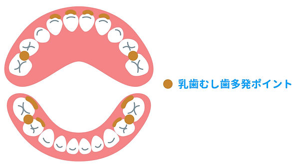 むし歯の好発部位.jpeg