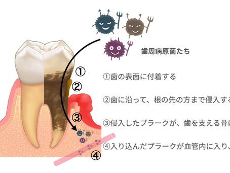 歯周病はきっかけにすぎない…体に起こる異変に気づく