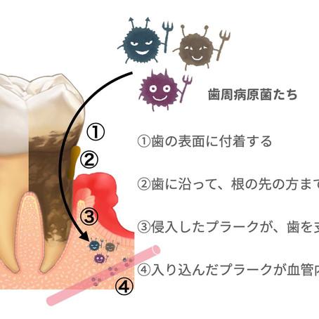 歯周病と関連する全身の病気