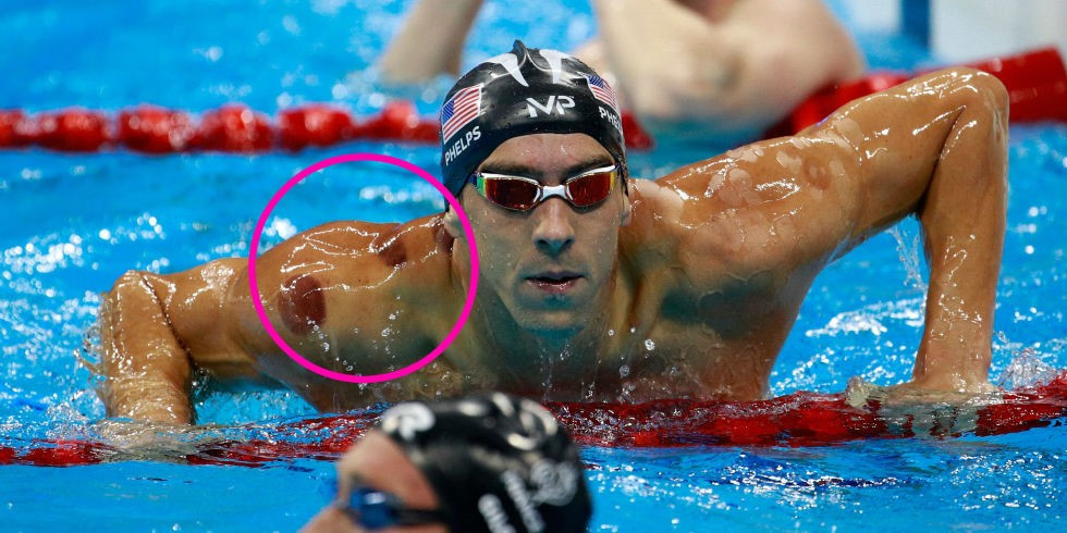 Michael Phelps. His cupping marks clearly visible.