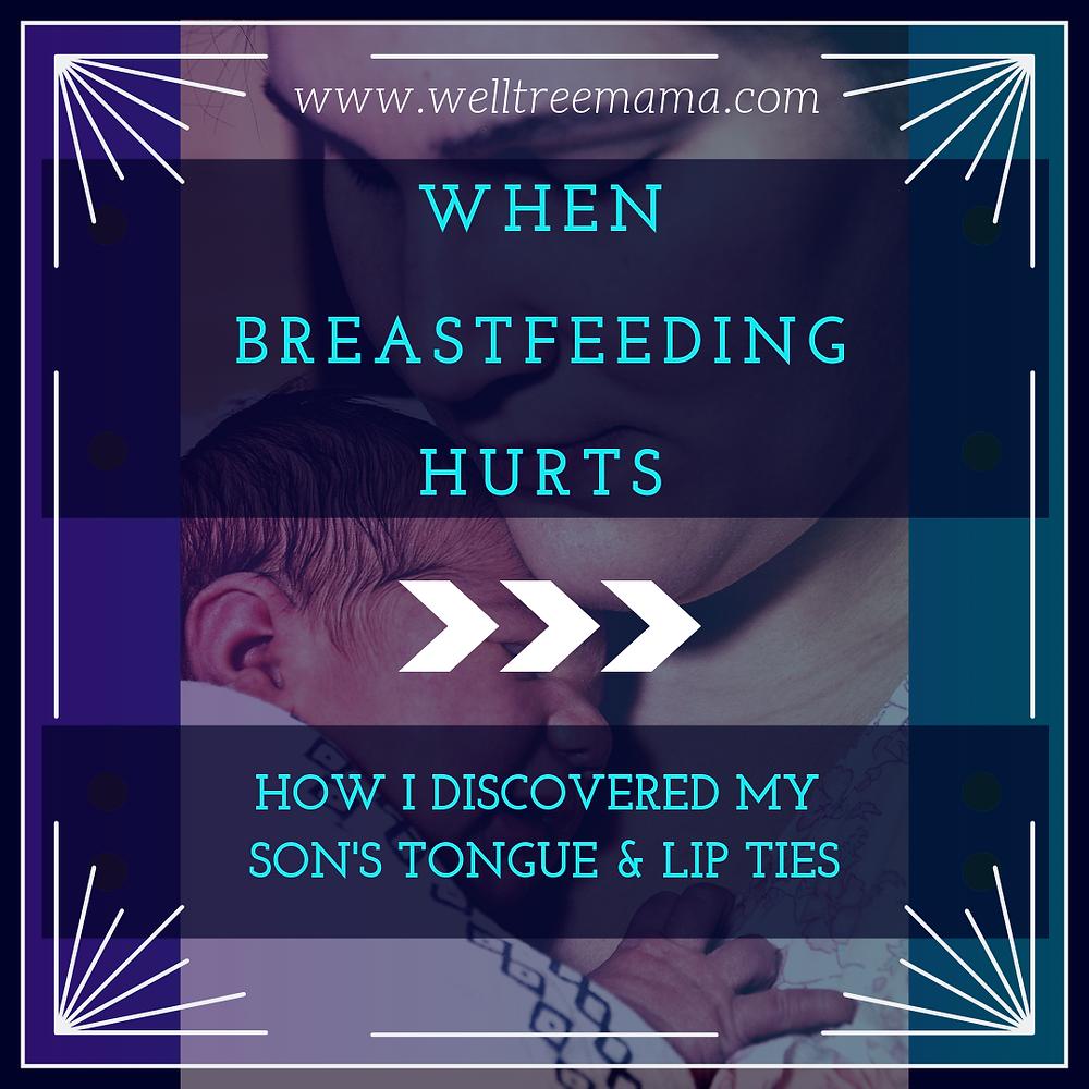 When Breastfeeding hurts, tongue tie, lip tie, mthrf, genetic mutaion, midline defect