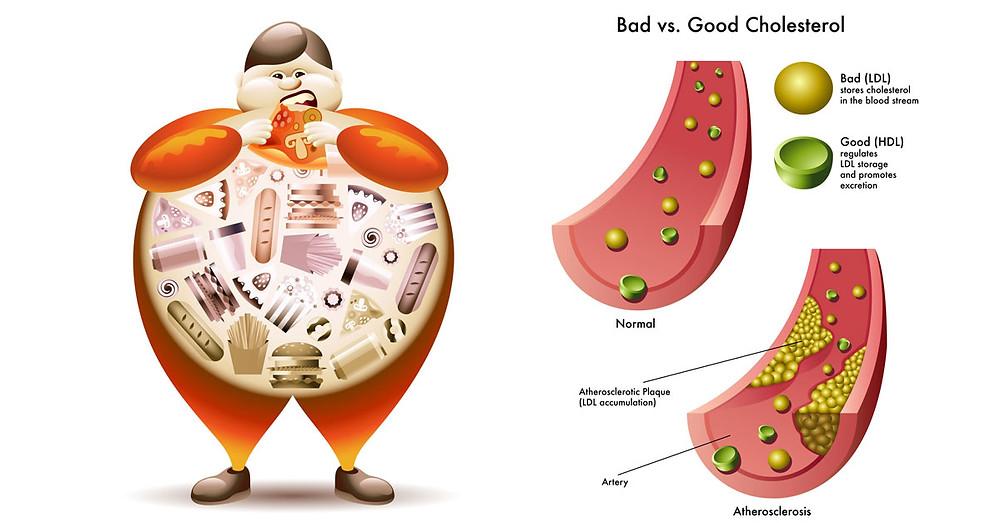 Bad vs Good Cholesterol