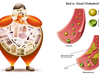 More Options for Cholesterol Control