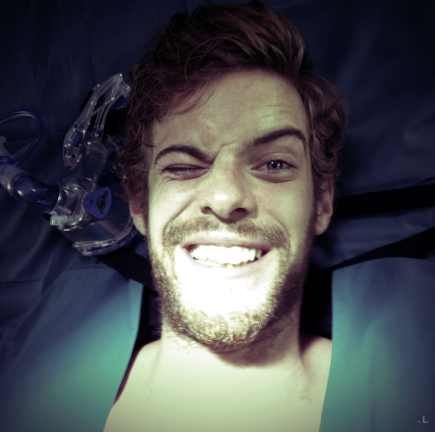 Wink Harry Treadaway
