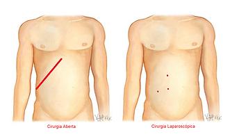 laparoscopia nefrectomia incisoes.png