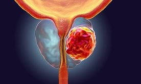 cancer prostata.jpg