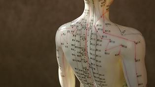 acupuncture-5.jpg