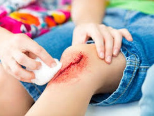 Falando sobre lesão de pele, por Vanice e Hercílio Magalhães