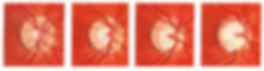 cataract surgery.jpg