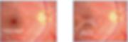 Epiretinal Membrane.jpg