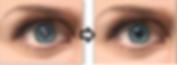 ophthalmology, cataract surgery, LASIK, premium lens, cataracts