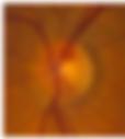 The Optic Nervr.jpg