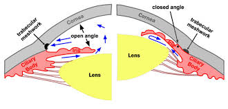 glaucoma schematic.png