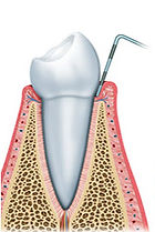 Healthy gums.jpg