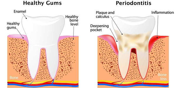 Gingivitis-and-Periodontitis-Illustratio