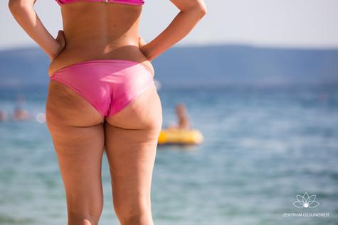 Cellulitis loswerden – die besten Tipps