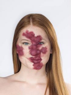 Lily Disfigurement 1.png