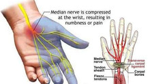 Reversing Carpal Tunnel Syndrome