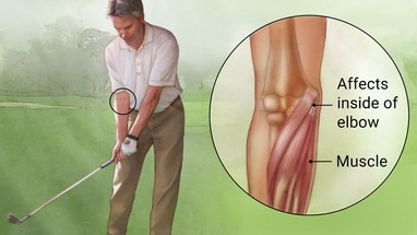 Treating Golfer's Elbow with Acupuncture