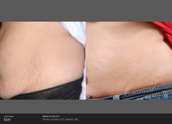 Stretch-Mark-Before-&-After-1_1