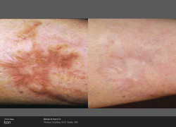 Scar-Removal-Before-and-After-Images-4