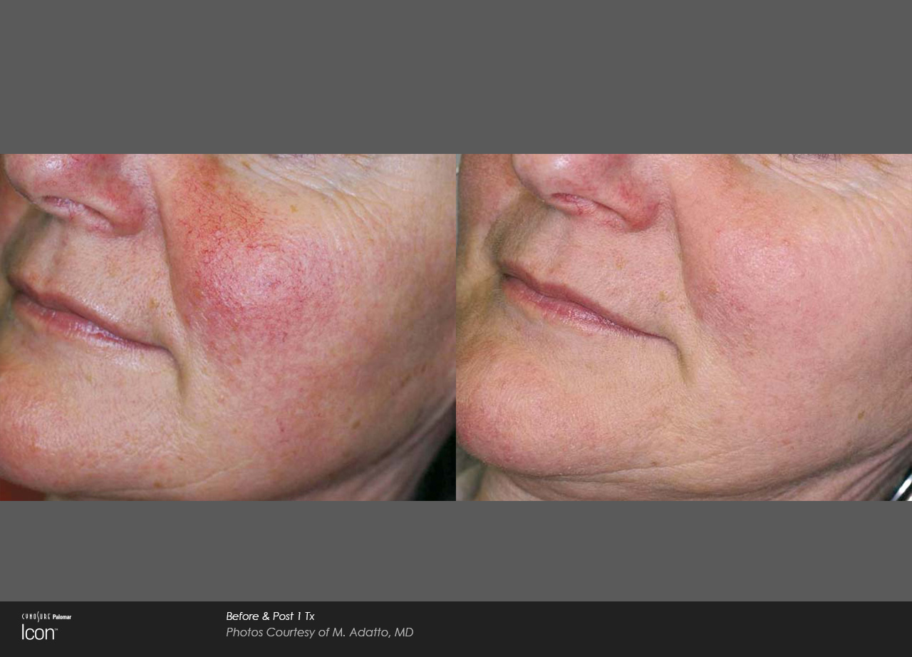 Skin-Revitalization-Before-&-After-Photo