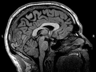 Talking Brains: The unfamiliar grey matter(s)