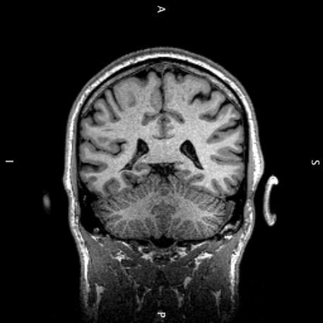 'Inside my head: MRI coronal' (2018)