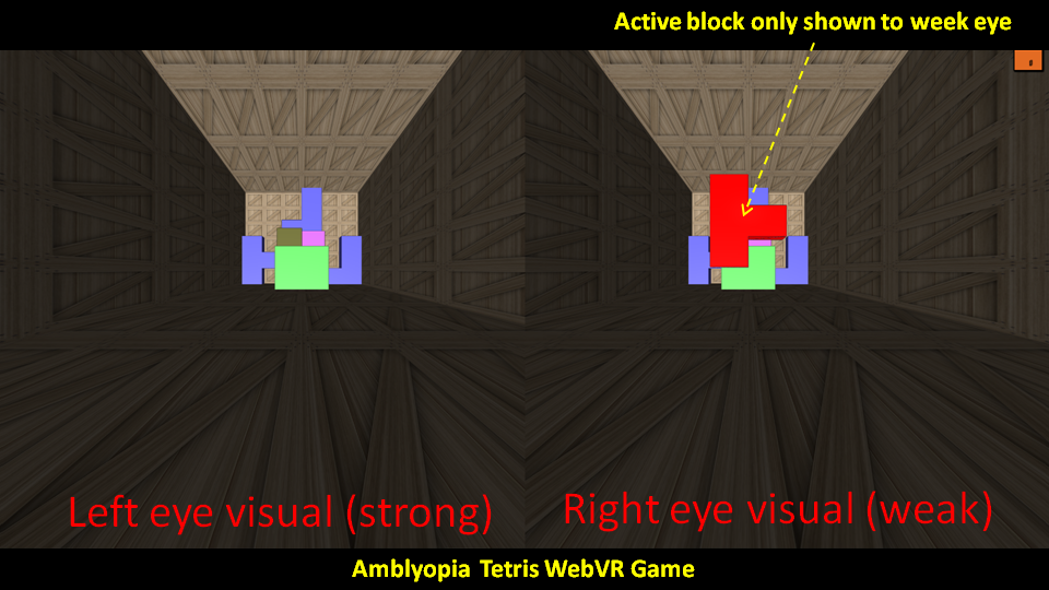 VR amblyopia and lazy eye therapy using virtual reality