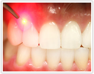 Laser Teeth Cleaning and Periodontl Therapy