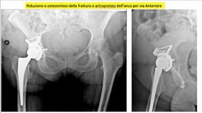 Artroprotesi dell'anca per via anteriore