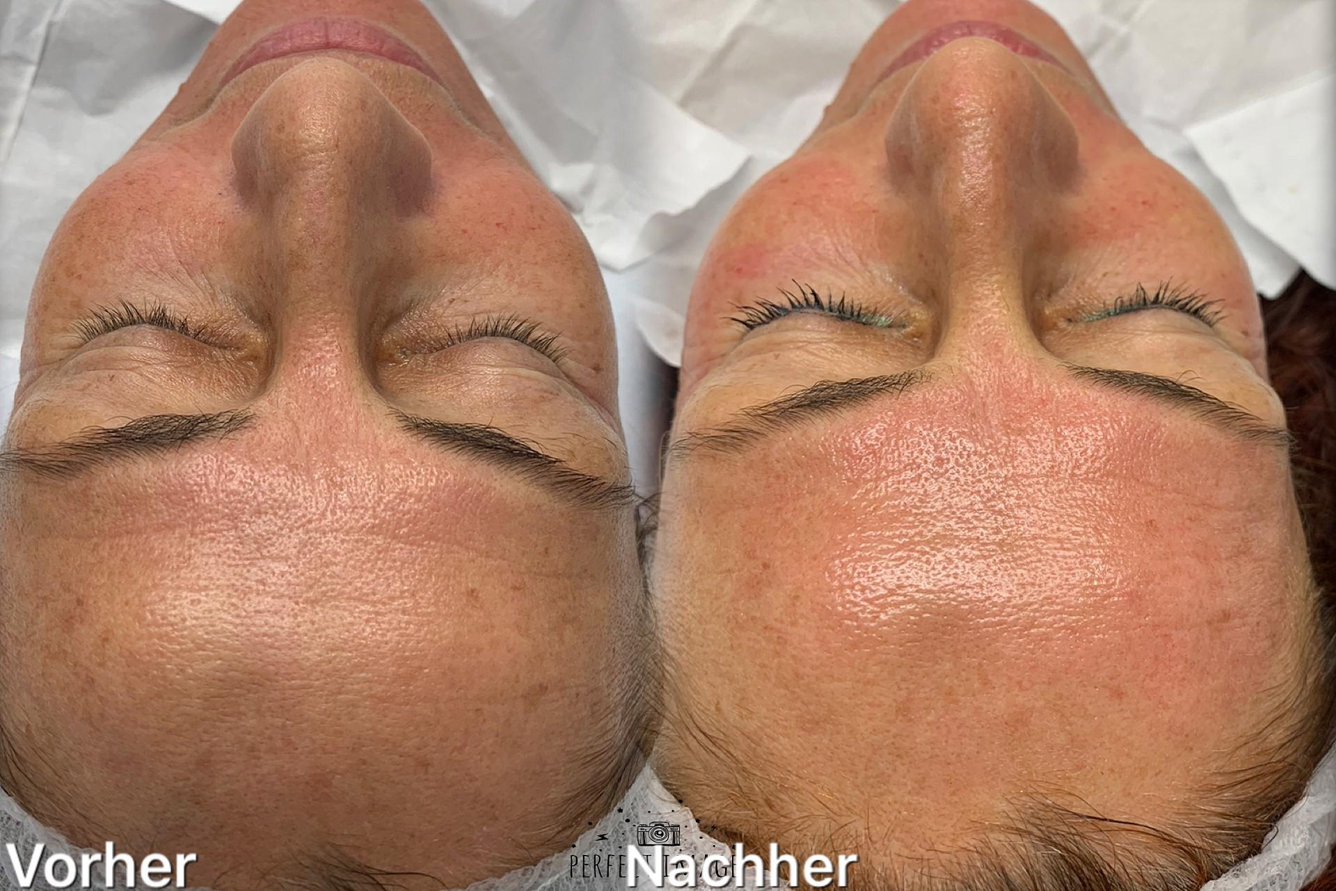 Anti Aging Kosmetik Bern
