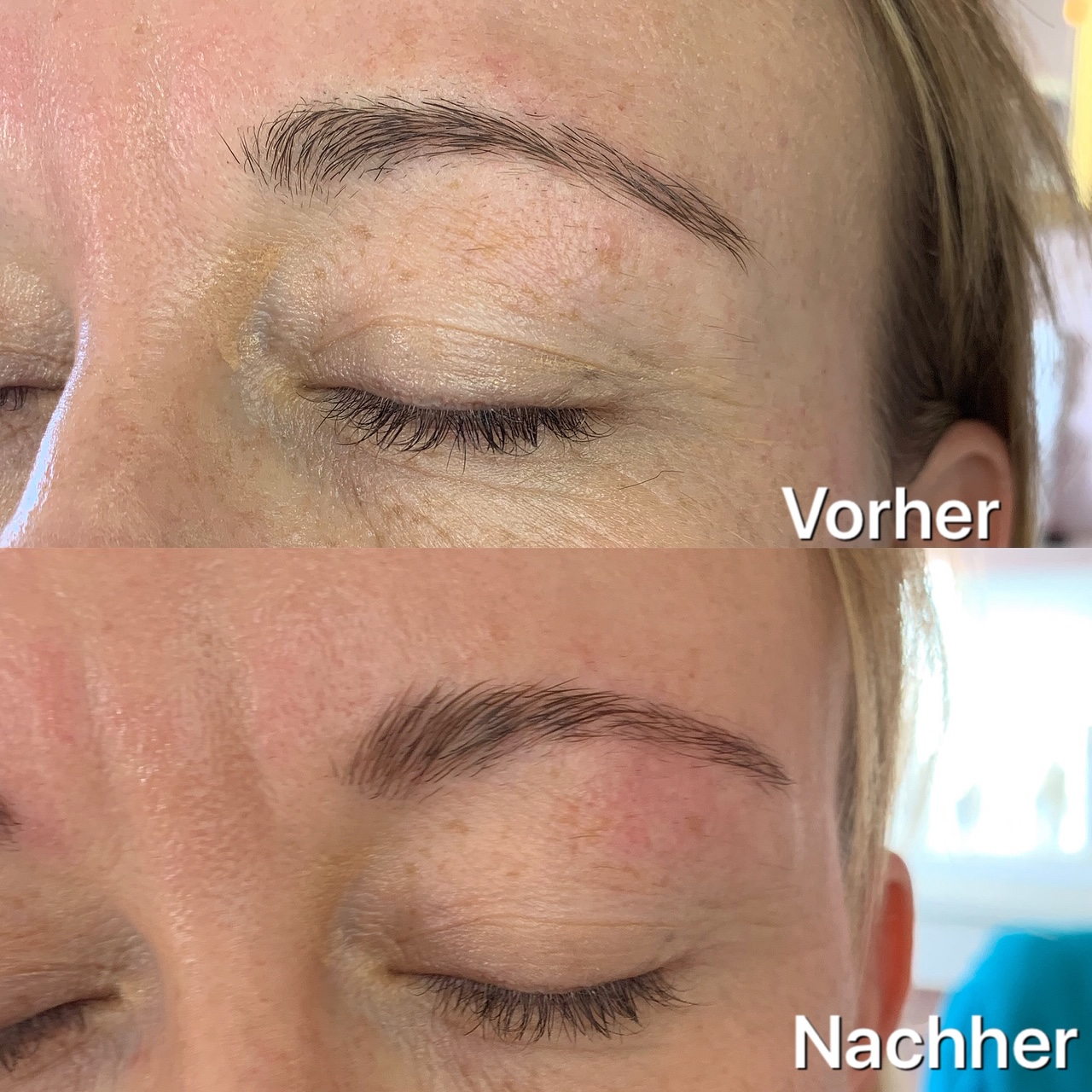 Brow Lifting Bern