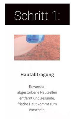 Hydrafacial Bern