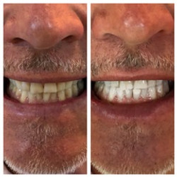 Kosmetische Zahnaufhellung Gümligen
