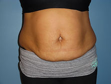 body sculpting cool sculpting laser lipo