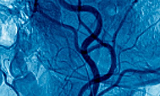 noninvasive-vascular-imaging-600x338.jpg