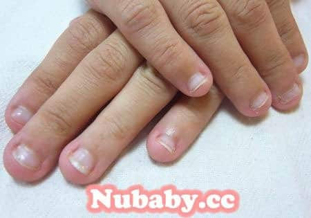 摳咬指甲矯正-超短甲面 甲床與甲肉萎縮