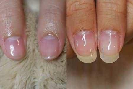 問題指甲-凹折且太軟的指甲變超美