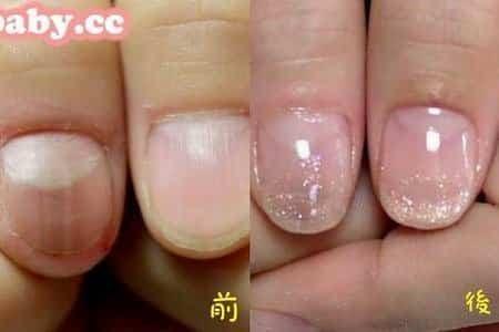 問題指甲處理-摳甲造成的大拇指變形