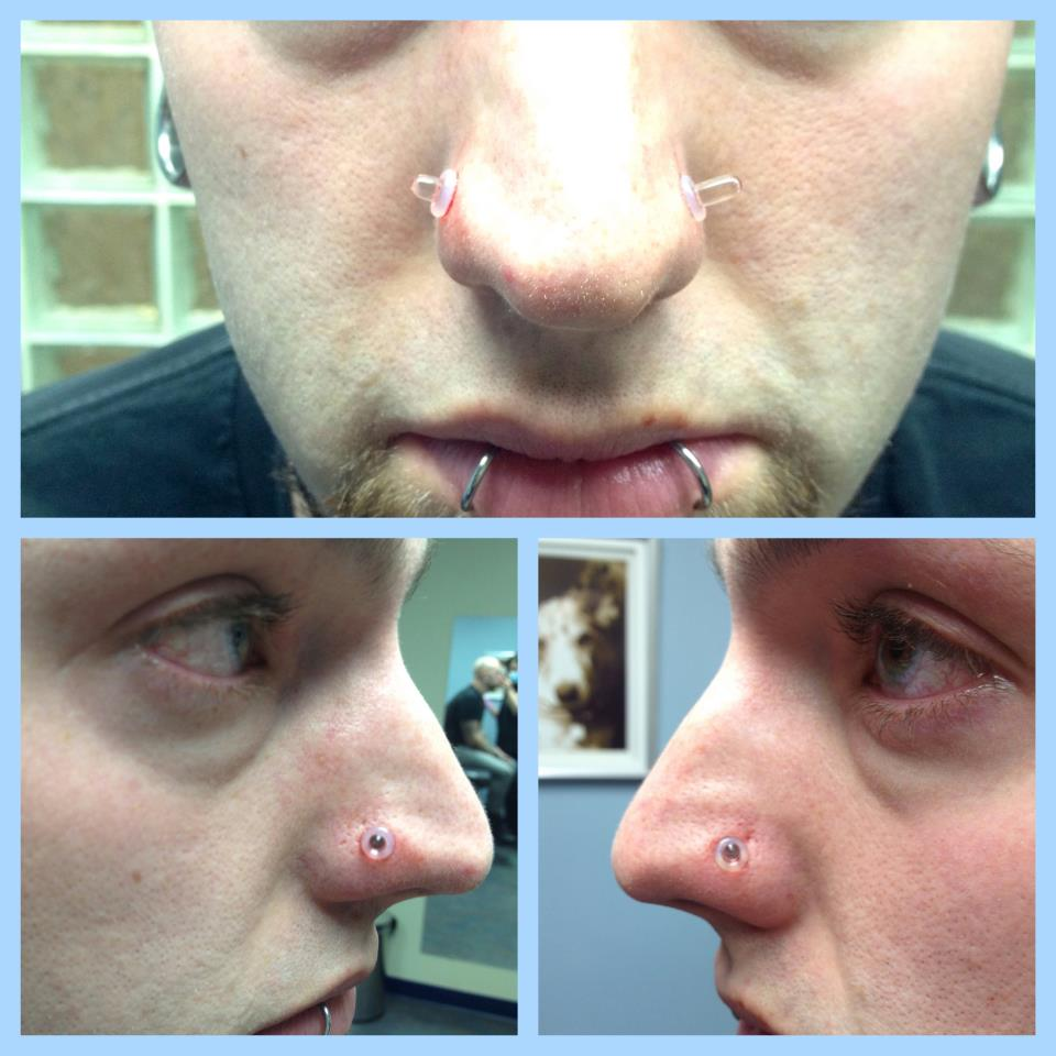 Large Gauge Nostril