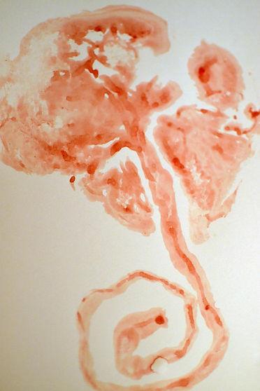 Placenta Blood Print