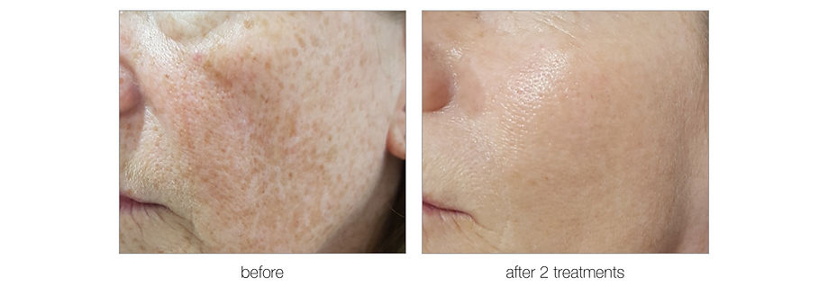 Photofacial before and after2.jpg