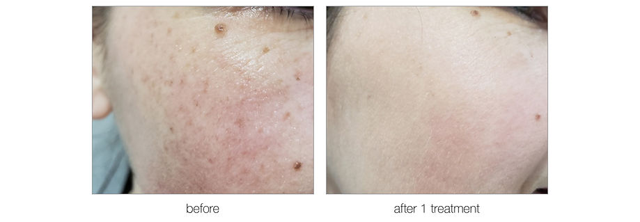 Photofacial before and after.jpg
