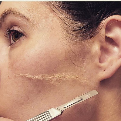 Dermaplaning facial excellent way to rem