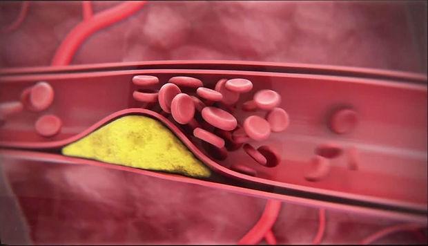 Obstrução Vascular - TOC.jpg