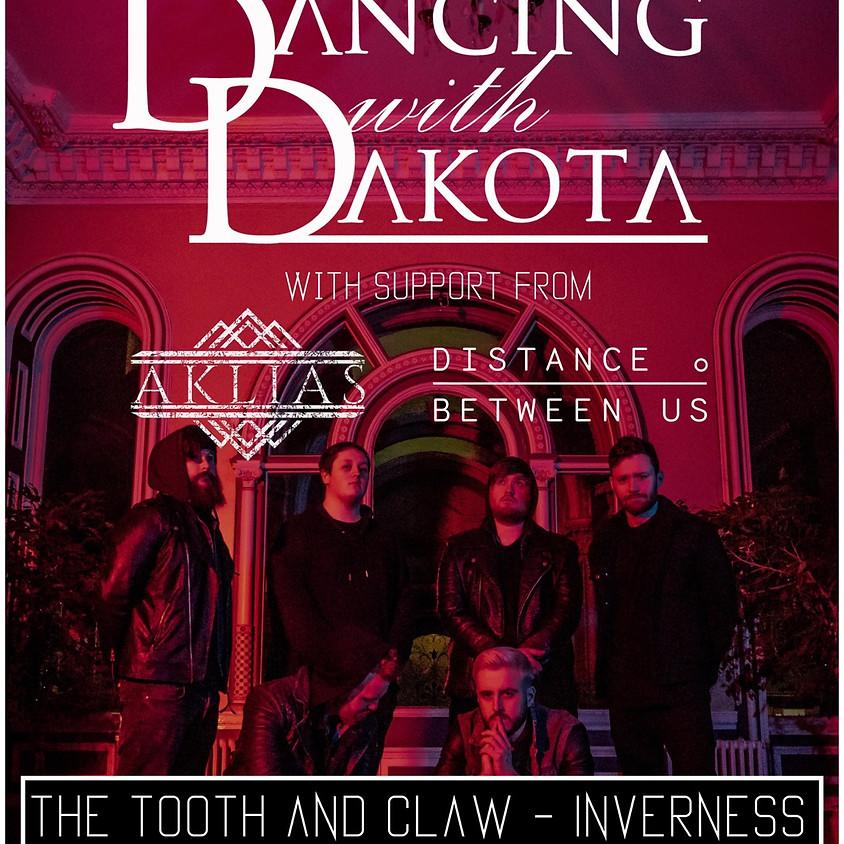 Dancing With Dakota support Aklias/Distance Between Us